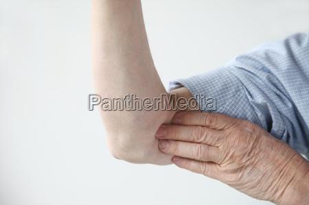 pain in upper arm